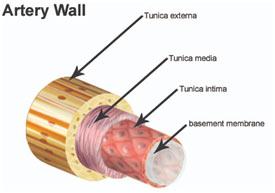 artery-wall