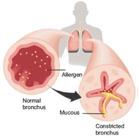 Respiratory-Asthma