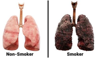 Lung-Cancer-smking