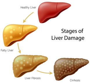 Diseases-of-Liver-in-Humans