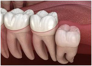 Teeth-in-Mammals